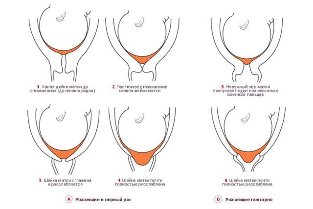 Что такое цервикометрия