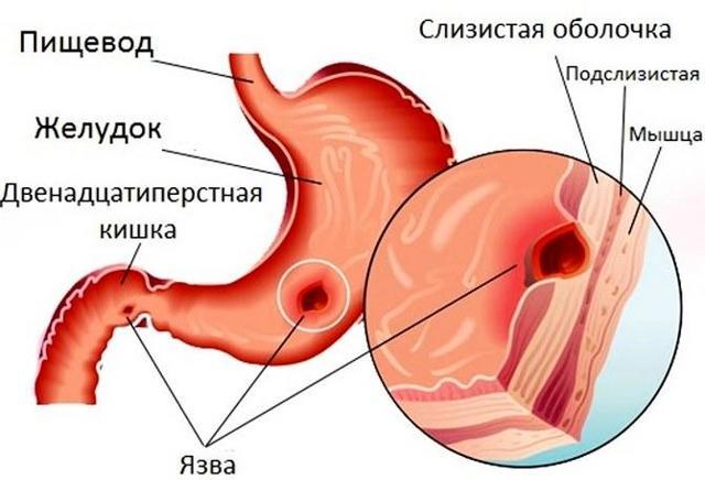 Кефир при язве желудка: когда употреблять, польза, состав, как готовить