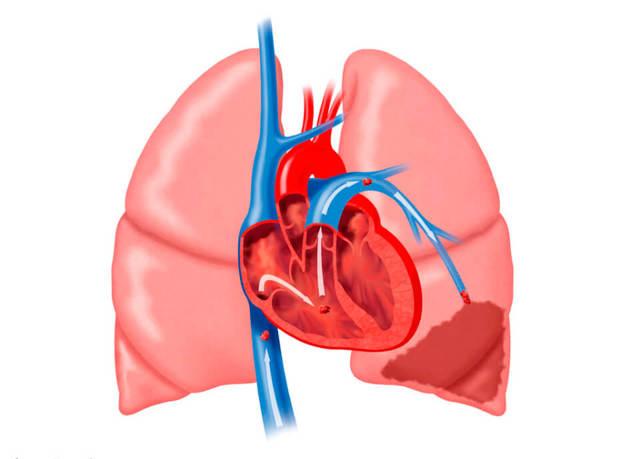 Миокардит сердца - что это, симптомы, причины, лечение ...
