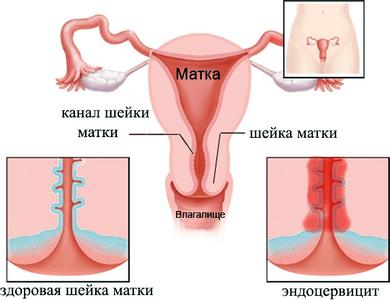 Эрозия и цервицит у женщин