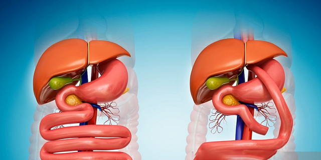 Шунтирование желудка: что это, как подготовиться, виды, сколько стоит