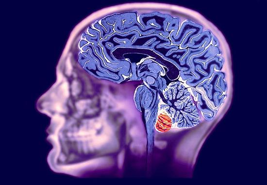 Сосудистый паркинсонизм: симптомы и лечение, причины, диагностика