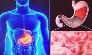Атрофия слизистой желудка: что это такое, причины, разновидности и лечение