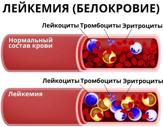 Состав крови человека: из чего он складывается, особенности у детей