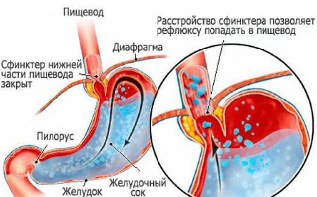 Рефлюкс эзофагит: лечение. Схема лечения лекарствами, как лучше лечить