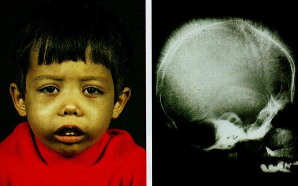 Талассемия (бета и альфа): что за болезнь, диагностика и симптомы, лечение