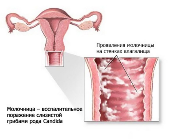 Признаки молочницы у девушек