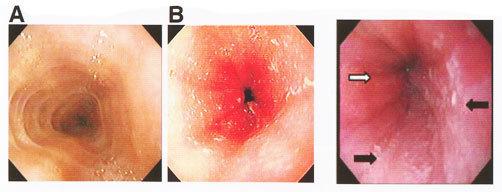 Катаральный эзофагит нижней трети пищевода: что это и как лечить, симптомы болезни