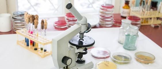 АСЛ-О крови: что это такое, норма, повышение и расшифровка анализа