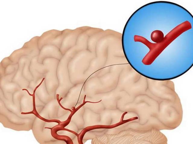 Сужение сосудов головного мозга, лечение и симптомы суженных сосудов головы