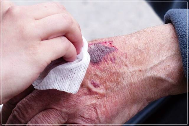 Как остановить кровь из пальца, когда кровотечение само не останавливается