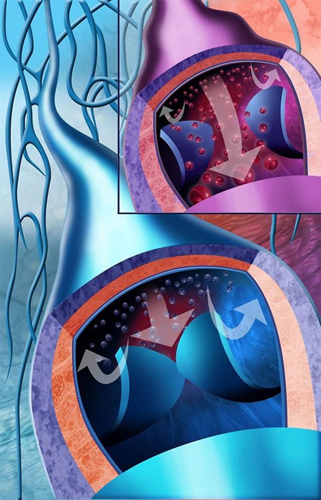 Вязкость крови: что это такое, как ее снизить и уменьшить, способы понизить