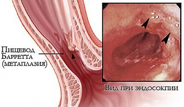 Метаплазия пищевода: что это такое, причины развития заболевания, его формы и симптомы, методы диагностики, лечение