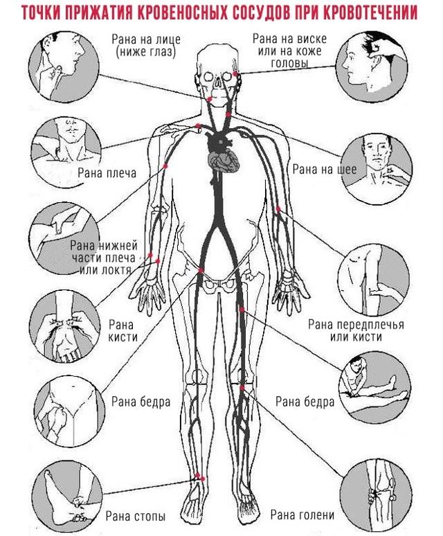 Как остановить кровотечение: способы временной и окончательной остановки