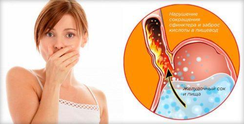 Как в домашних условиях определить кислотность желудка: эффективные способы