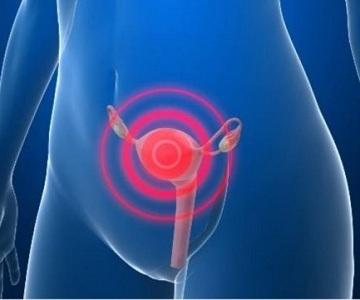 Кровотечение при климаксе: причины, симптомы и лечение