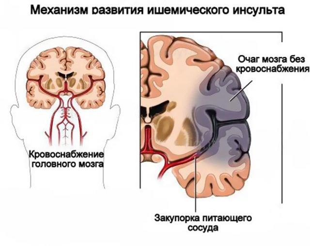 Ишемическая болезнь сердца у женщин: признаки и симптомы ишемического инсульта