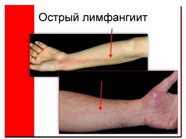Воспаление сосудов (лимфатических, кровеносных): причины, симптомы и лечение