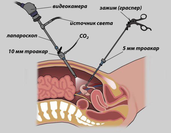Лапароскопия кисты яичника: как проходит операция, отзывы, послеоперационный период