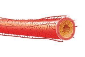 Атеросклероз сосудов сердца: симптомы и лечение