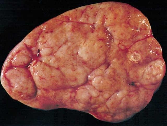 Дисгерминома яичника: что это такое, причины, симптомы