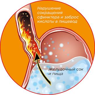 Маалокс при беременности: можно ли, инструкция по применению, отзывы женщин