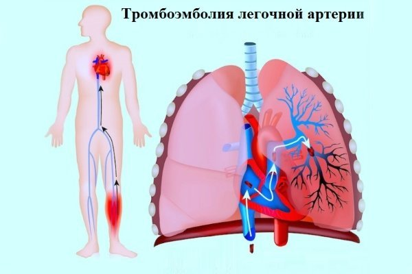 Что делать, если болит сердце и тяжело дышать?