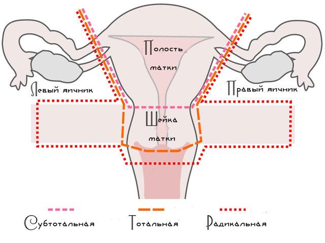 Месячные после удаления матки: могут ли идти при сохраненных яичниках