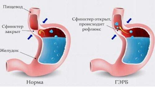 Гастрорефлюксная болезнь: симптомы и признаки, методы диагностики