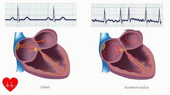 Симптомы нарушения сердечного ритма, как восстановить нормальный ритм сердца