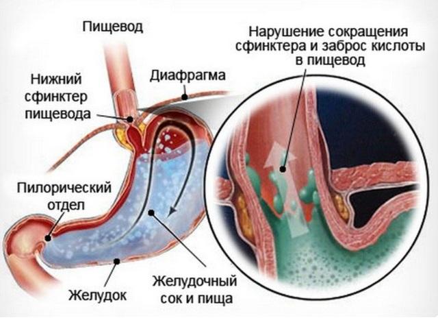 Рефлюкс эзофагит (гастроэзофагеальная рефлюксная болезнь): симптомы и лечение народными средствами, травами