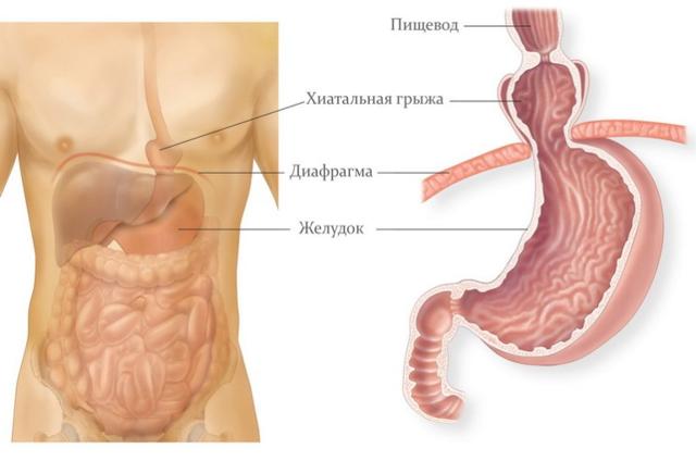 Скользящая грыжа пищеводного отверстия диафрагмы (СГПОД): что это такое, симптомы и лечение