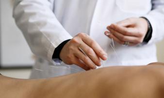 Иглоукалывание при бесплодии: у женщин, мужчин