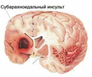 Ишемическая болезнь головного мозга (ишемия): последствия, степени