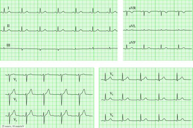 Что показывает ЭКГ сердца (кардиограмма), какие болезни обнаруживает