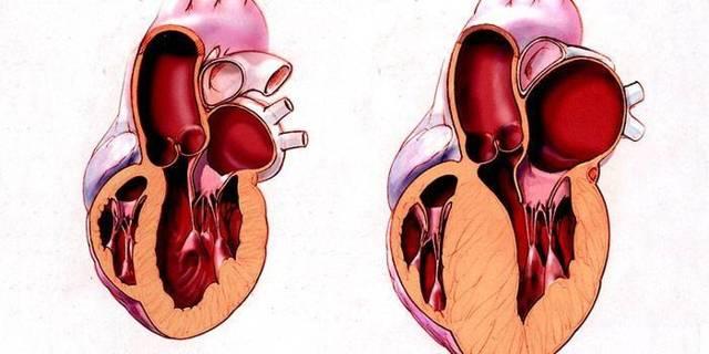 Гипертрофия левого желудочка сердца: признаки на ЭКГ, лечение и причины