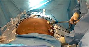 Грыжа желудка: симптомы и признаки, диагностические процедуры