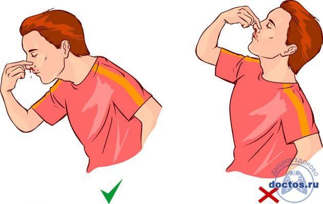 Как остановить кровь из носа: что делать при носовом кровотечении