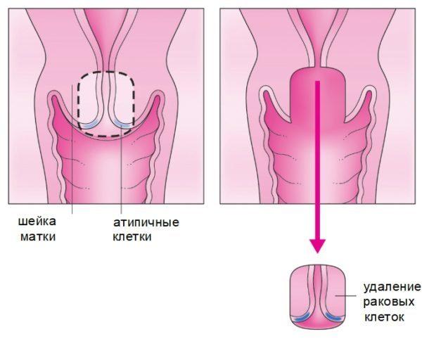Что такое трахелэктомия