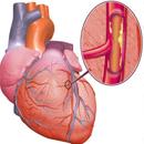 Ишемическая болезнь сердца (острая, хроническая): причины, формы, лечение