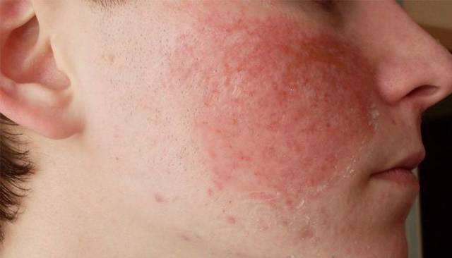 Гиперемия кожи лица и кожных покровов тела: причины, лечение