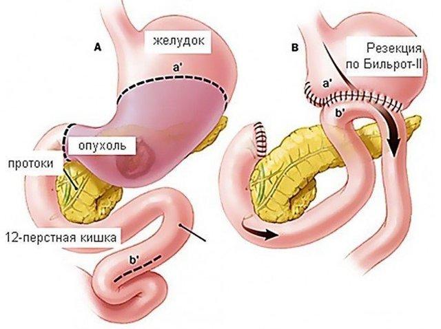 Демпинг синдром после резекции желудка: что это такое, симптомы и лечение