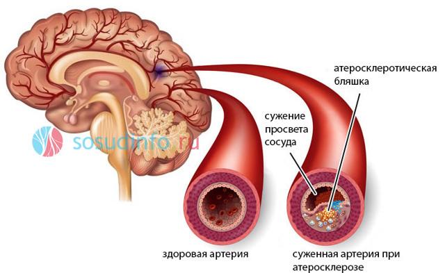 Церебральный атеросклероз: лечение, симптомы, причины и признаки