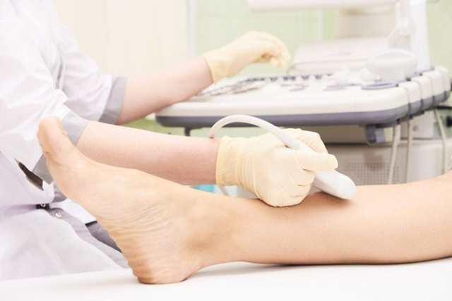 Дуплексное сканирование вен нижних конечностей (дуплекс сосудов)