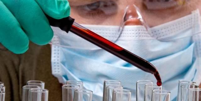 Волосатоклеточный лейкоз: лечение и симптомы