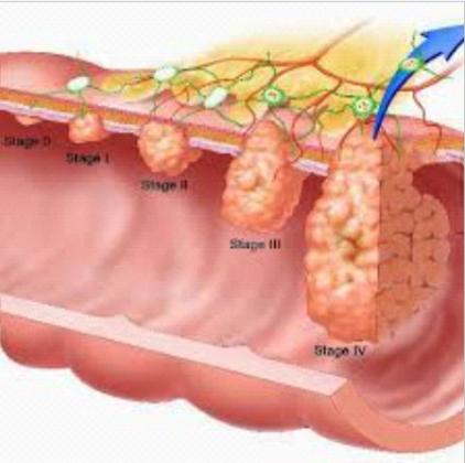 Анальное кровотечение: причины, виды и лечение