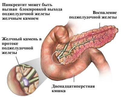 Боль в желудке отдает в спину: причины, что делать, лечение и профилактика