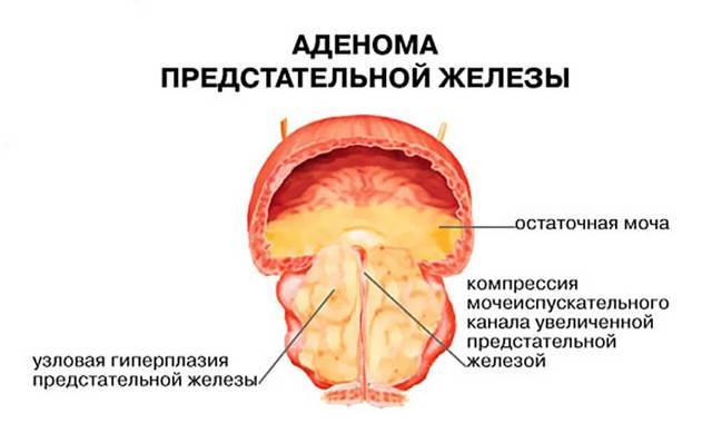 Стенозирующий атеросклероз БЦА, артерий нижних конечностей и коронарных