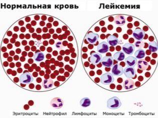 Тромбоциты: норма у женщин, при беременности, как повысить их уровень