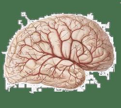 Глиоз сосудистого генеза и единичные супратенториальные очаги